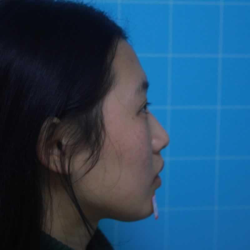 我在长沙脸博士医疗美容门诊部做的鼻部多项怎么样?前后效果如如何。