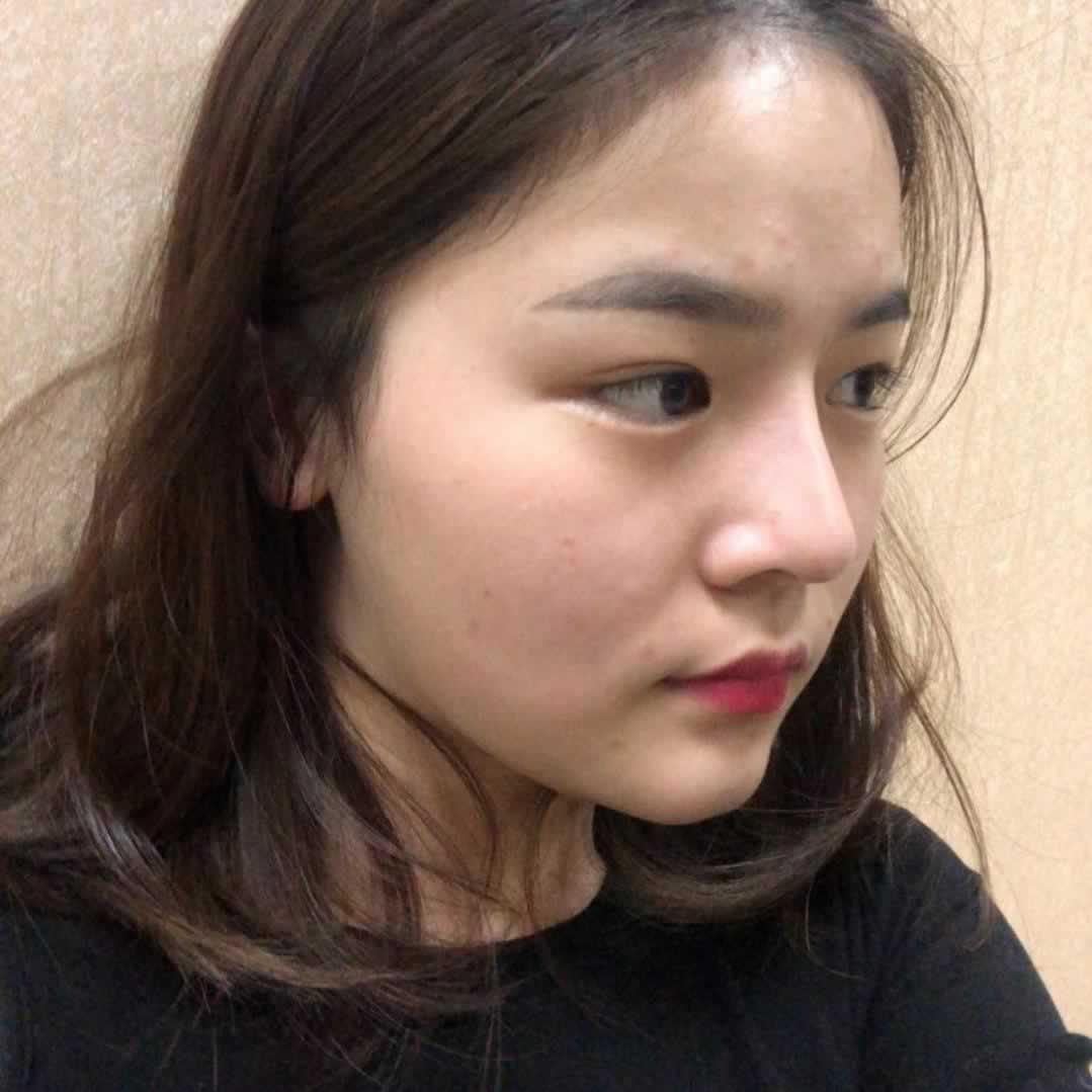 我在杭州维多利亚做的眼部多项手术,恢复后眼睛好像会说话一样。