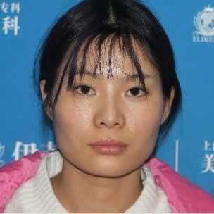 在上海伊莱美医疗美容医院做的下颌角整形怎么样,脸变小了,给大家分享一下感受。
