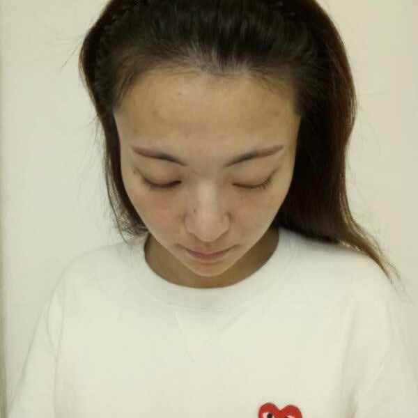 在南京华美做的种植发际线,这次没人再叫我秃头少女。