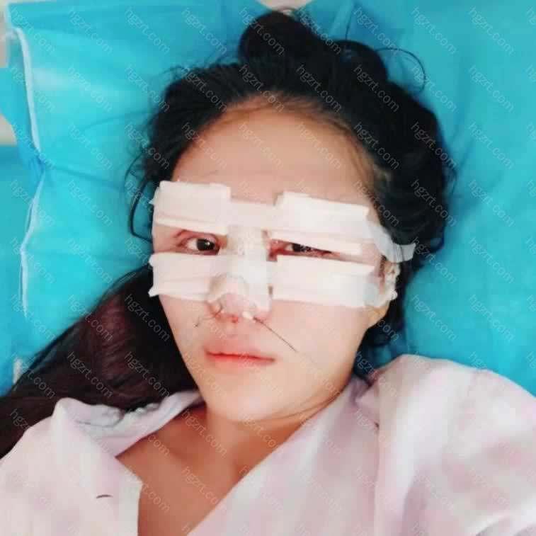【鼻中隔软骨隆鼻第0天】早上十点半到医院