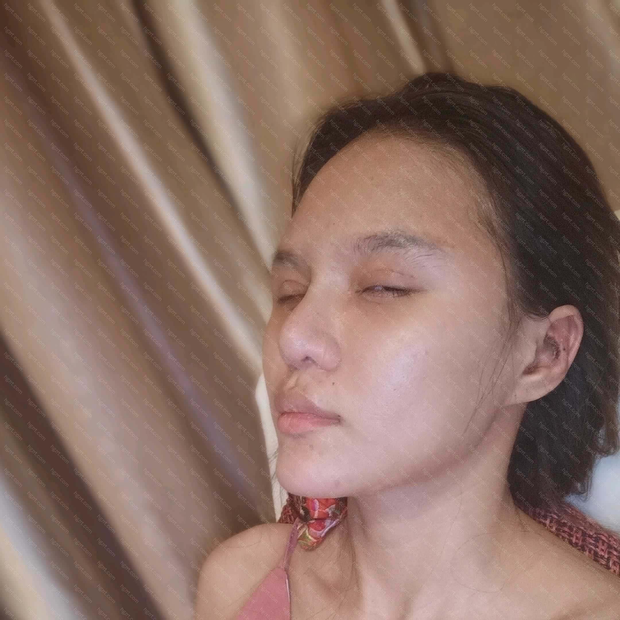 【鼻中隔软骨隆鼻第18天】9-10号今天第十八天脂肪填充的太阳穴跟眉弓消了很多