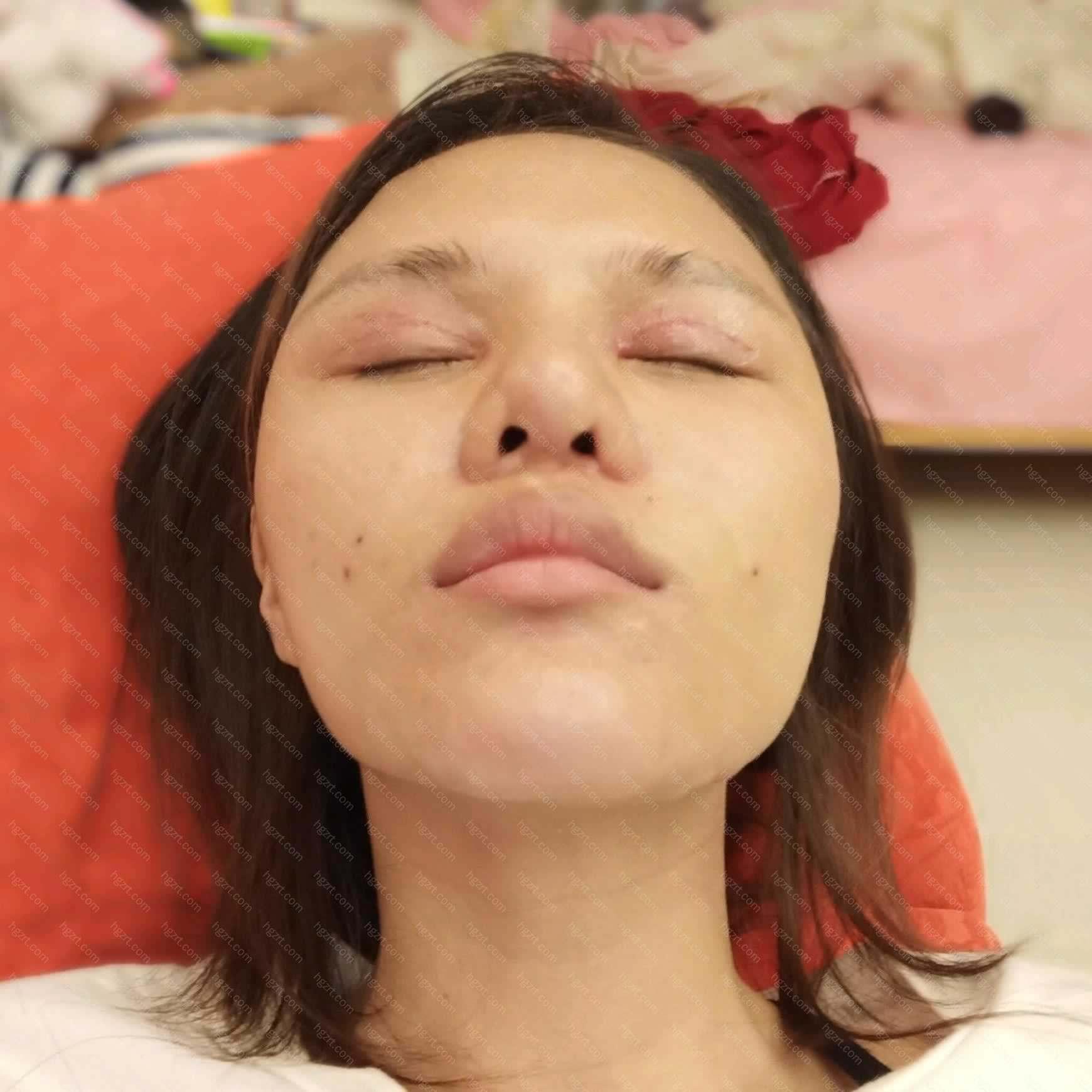 【鼻中隔软骨隆鼻第114天】一个院长做出来的眼部多项跟鼻部多项