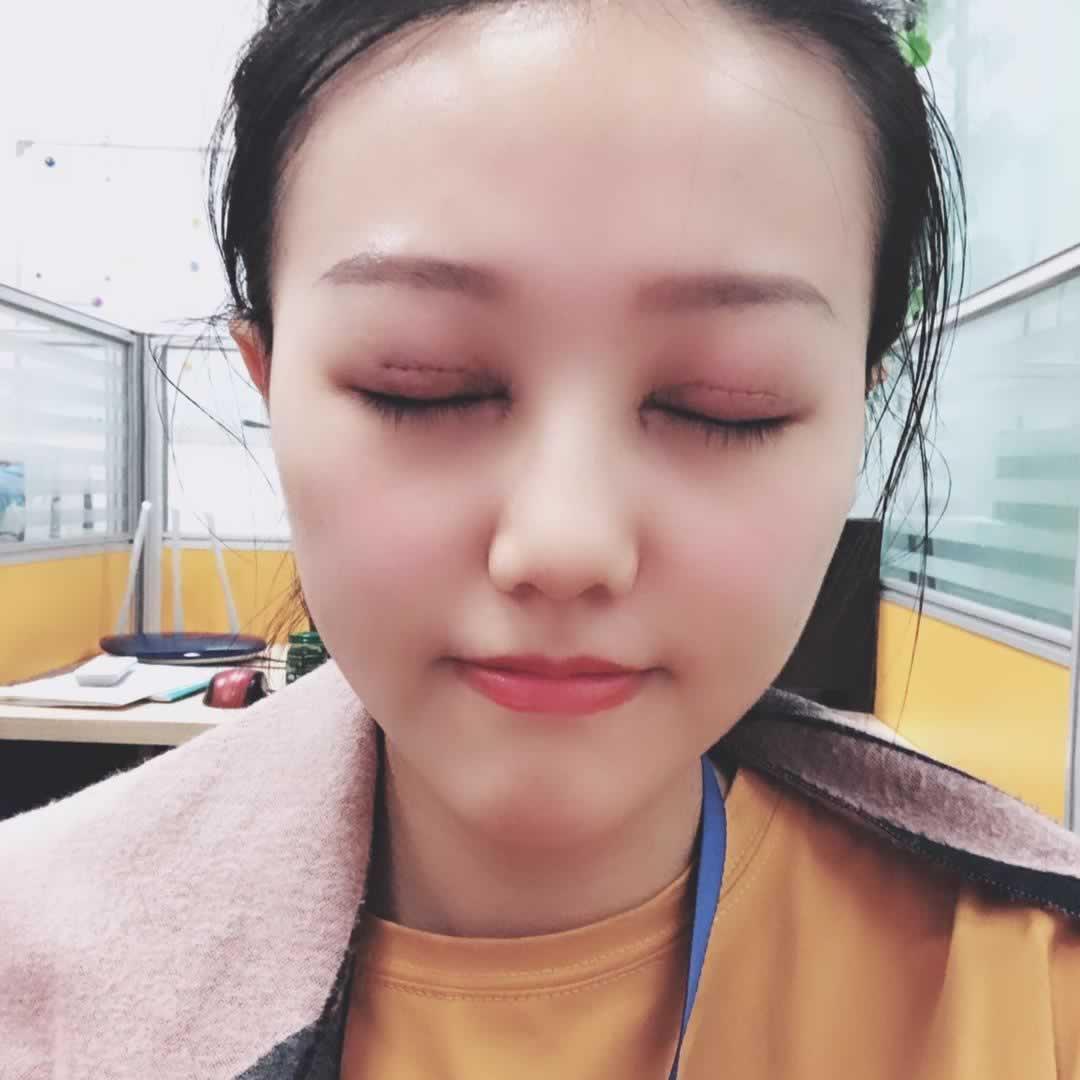 我在中山美南华美容医院做切开双眼皮好吗?恢复效果如何。