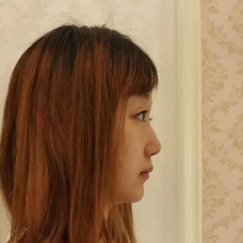 和小仙女们分享在杭州维多利亚做的鼻综合整形