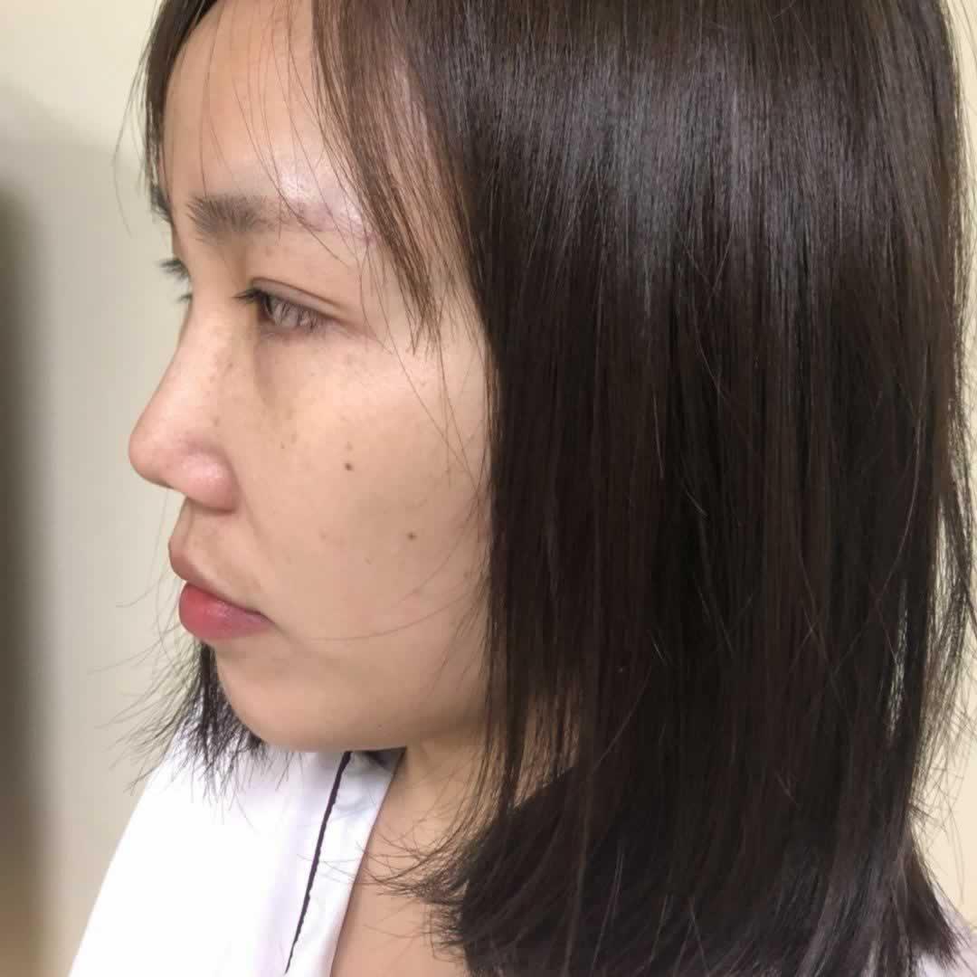 肋软骨隆鼻多久恢复?术后恢复三个月效果基本就会稳定