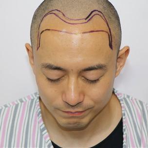 植发治愈了我一个秃顶中年男人的不开心,让我又年轻了一次!