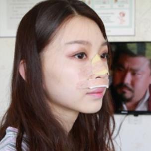 手术室的时候知道鼻子上裹着纱布