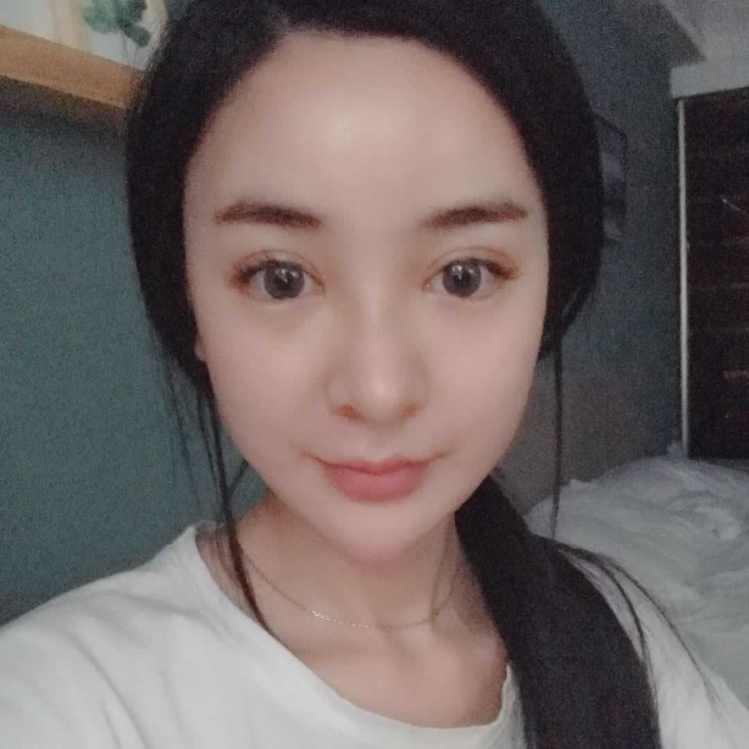 我在芜湖瑞丽做的切开双眼皮怎么样,给大家分享一下。