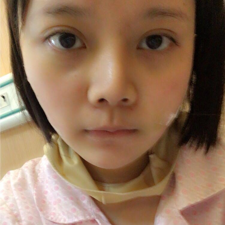 本人在合肥亚典美容医院做的面部吸脂瘦脸效果让大家见我都是各种夸赞哦。