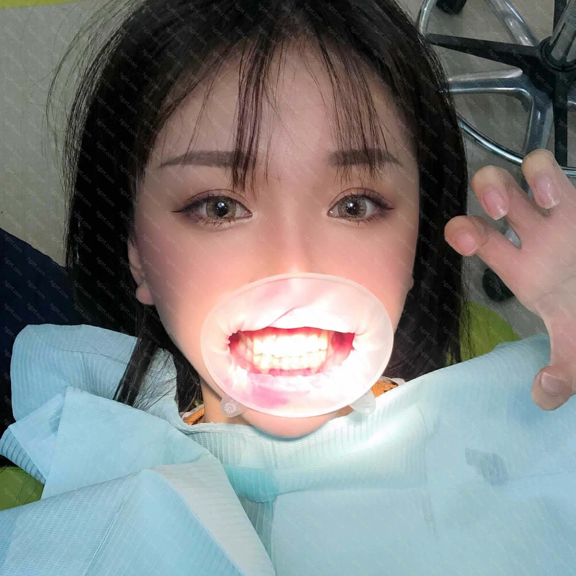 牙齿歪斜不好看给我带来了很多的困扰