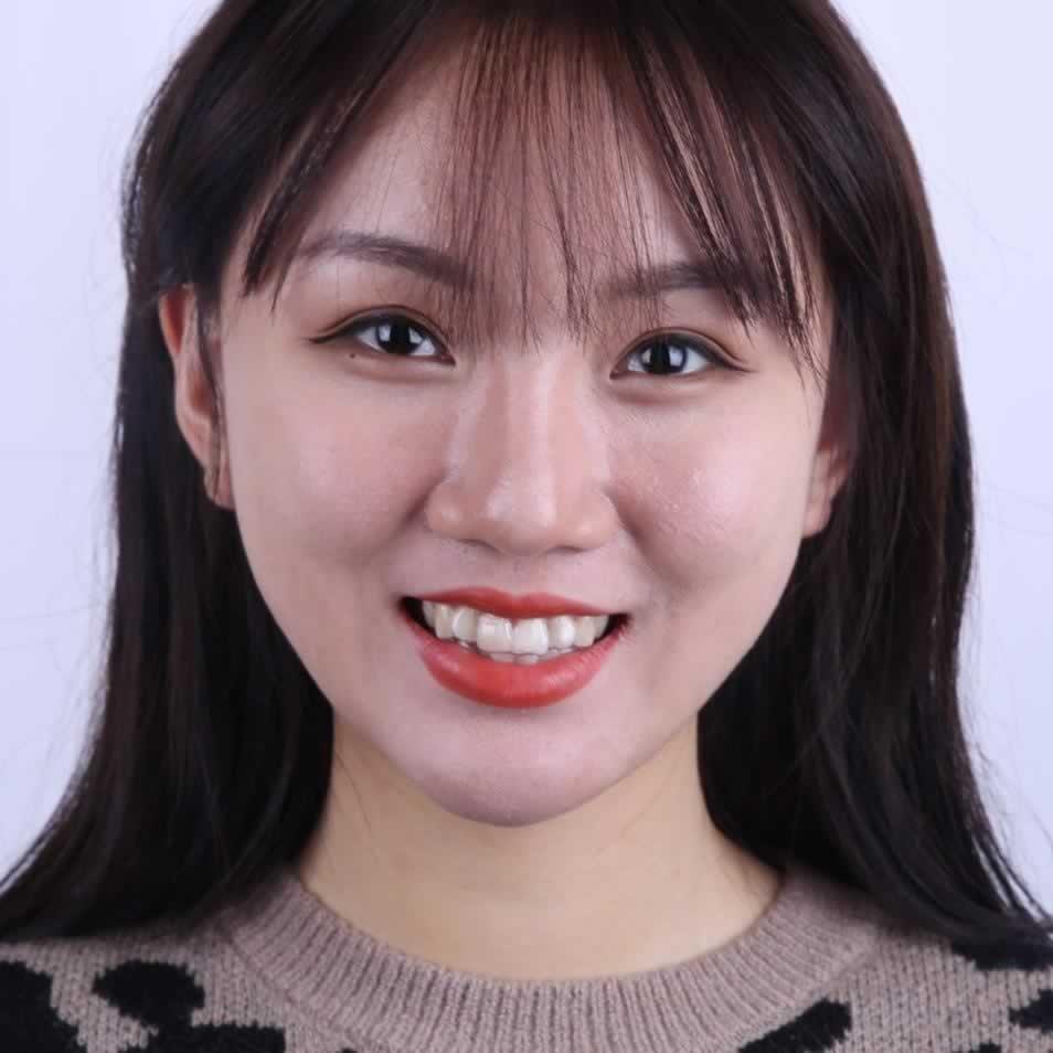 很多小可爱都问隐形矫正牙齿多少钱?过来点赞就告诉大家我在上海华美整形医院做的隐形矫正牙齿价格哦。