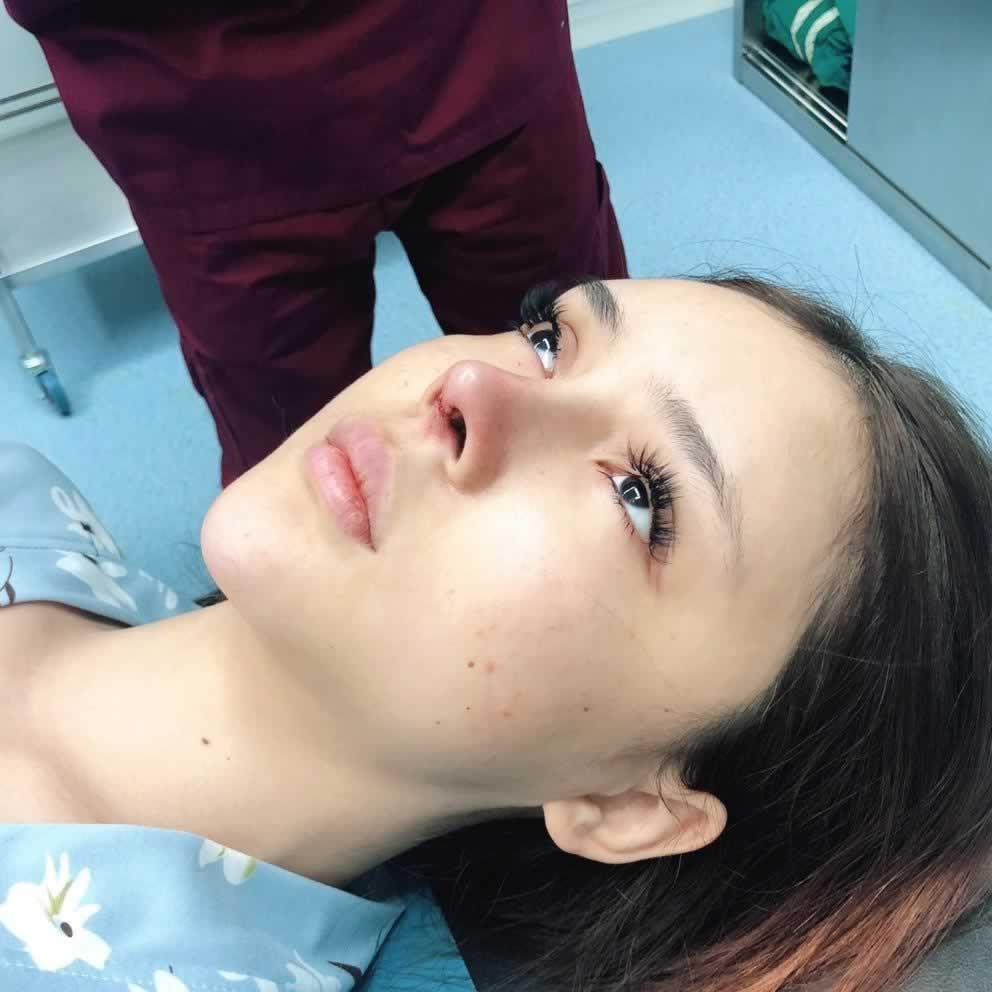 【鼻部多项第0天】做完手术刚到家~之前做的喝酒喝多了摔倒了把鼻尖碰歪了