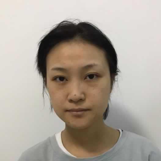 太喜欢在深圳艺星做的鼻综合啦,好看的鼻子对容貌改变太大了