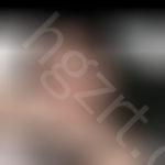 北京柏丽整形医院李劲良医生给我做的半肋+膨体鼻部多项让我轻松变身女神