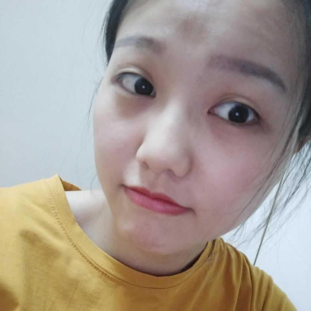 前段时间朋友问我切开双眼皮会留疤吗?我在广州做的切开双眼皮并没有疤痕哦。