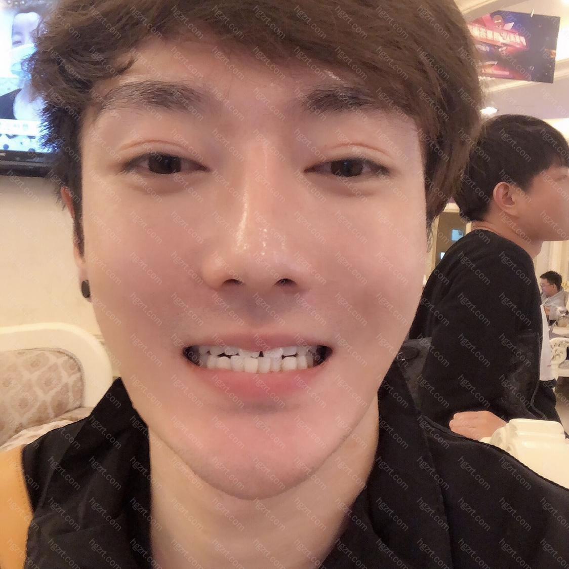 呜呼!昨天终于把心心念念的牙齿矫正在上海伊莱美整形医院做了!从此我也变成了一名牙套男!啊哈哈哈哈哈~