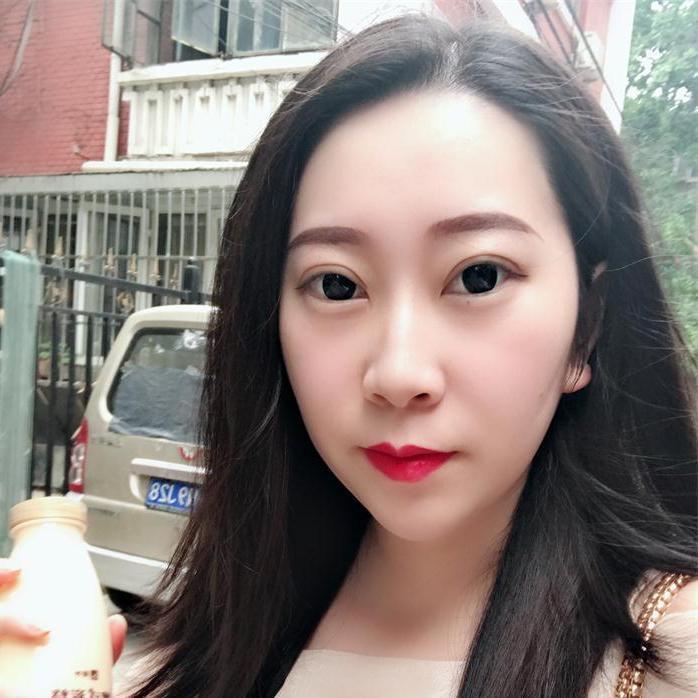 看下me在北京画美医疗美容做切开双眼皮的恢复时间长不长