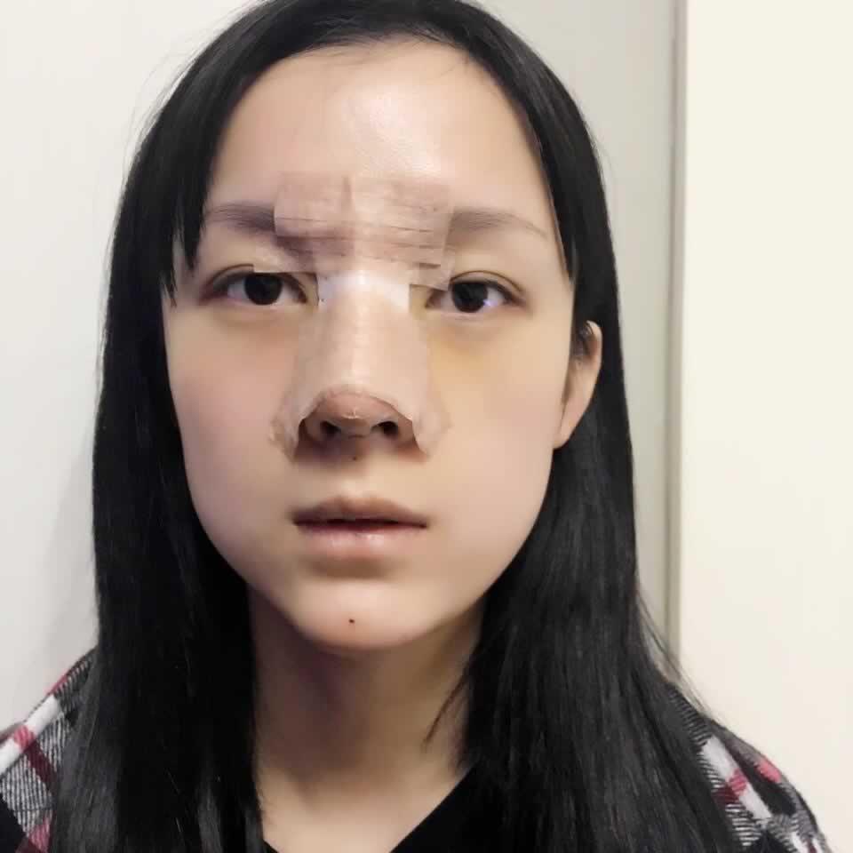 今天和大家分享一下我做的肋软骨隆鼻经历和效果图。