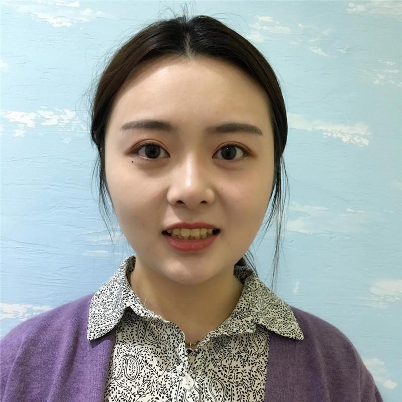北京哪里做瓷贴面比较好?来看看我在北京博爱口腔医院做的效果好不好?