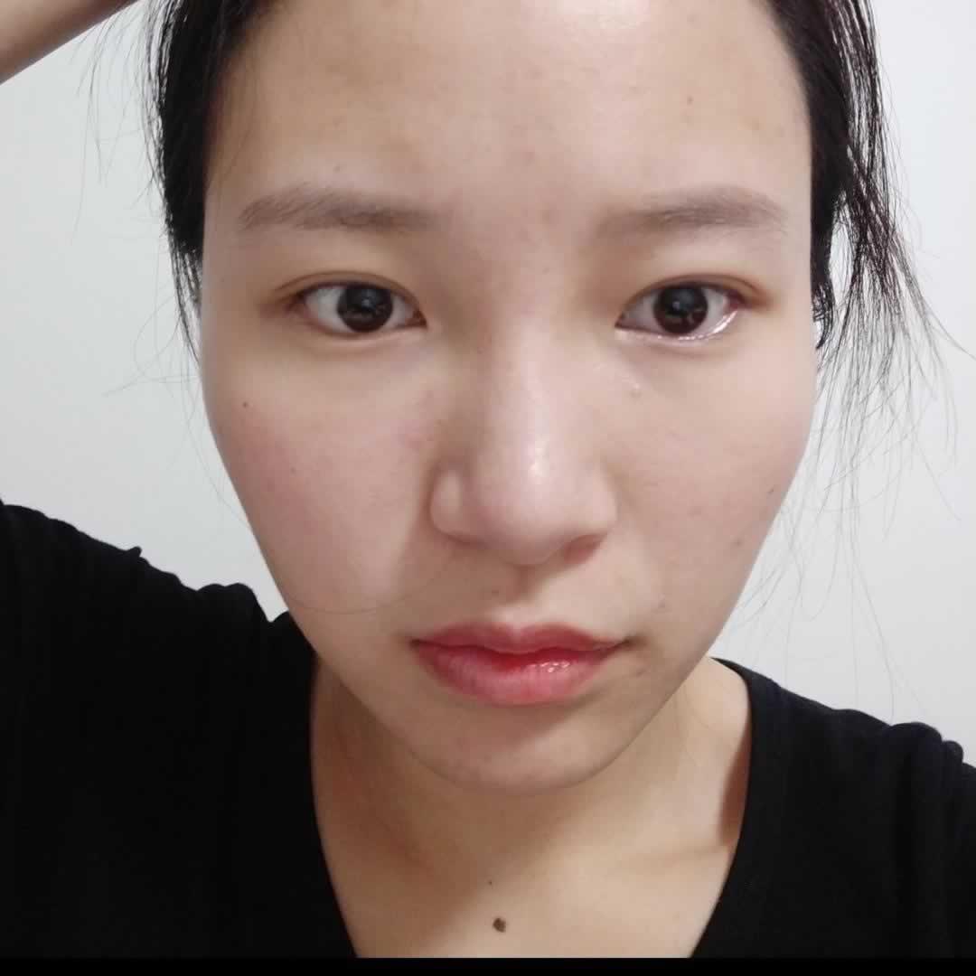 盆友问vline瓜子脸手术的后遗症是什么啊,我觉得没有不好哦因为我亲身经历过啊。