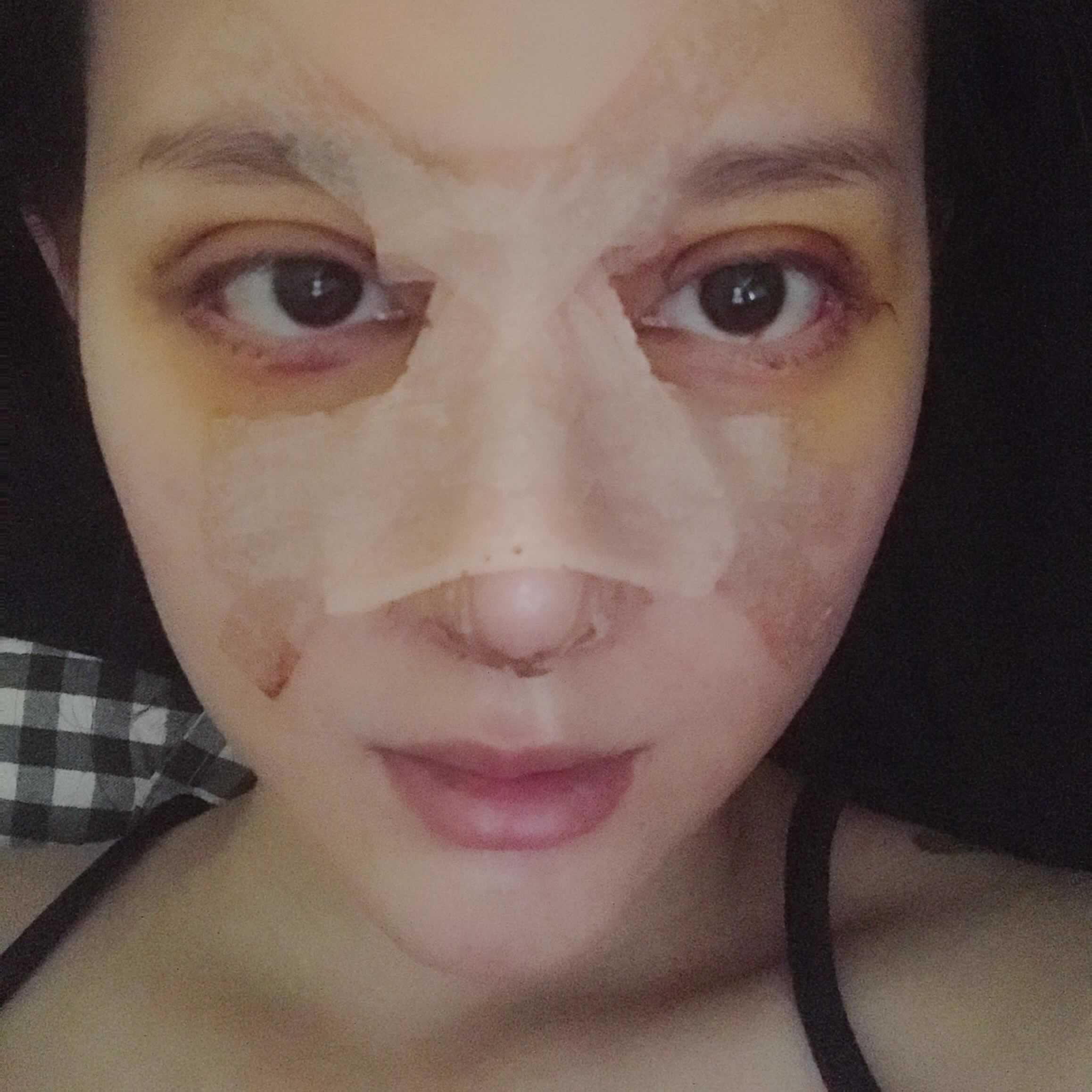 想了解眼综合和隆鼻可以一起做吗,我的经历告诉你可以哦。