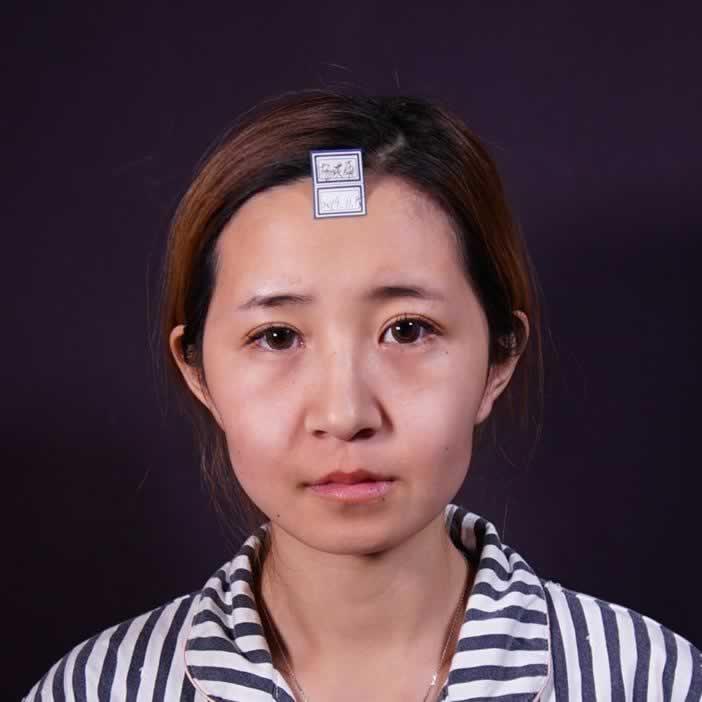 自体脂肪全脸填充手术后,瞬间觉得自己变得更漂亮了。