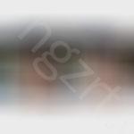 给脸比较肥的妹子设计了面部吸脂和假体填充法令纹效果图前后对比