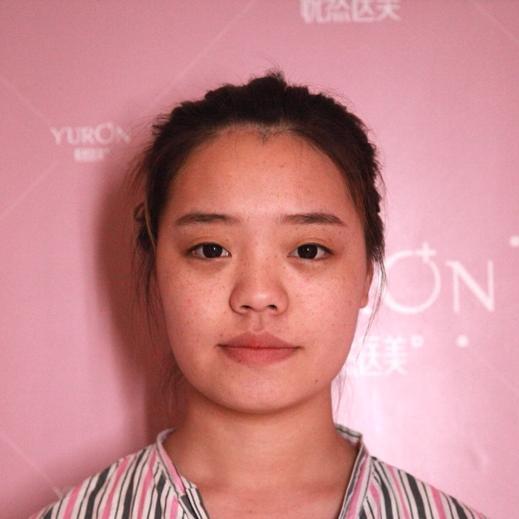 好看的鼻子太重要了,对整个五官的改变特别大,在北京悦然做的鼻综合我很满意