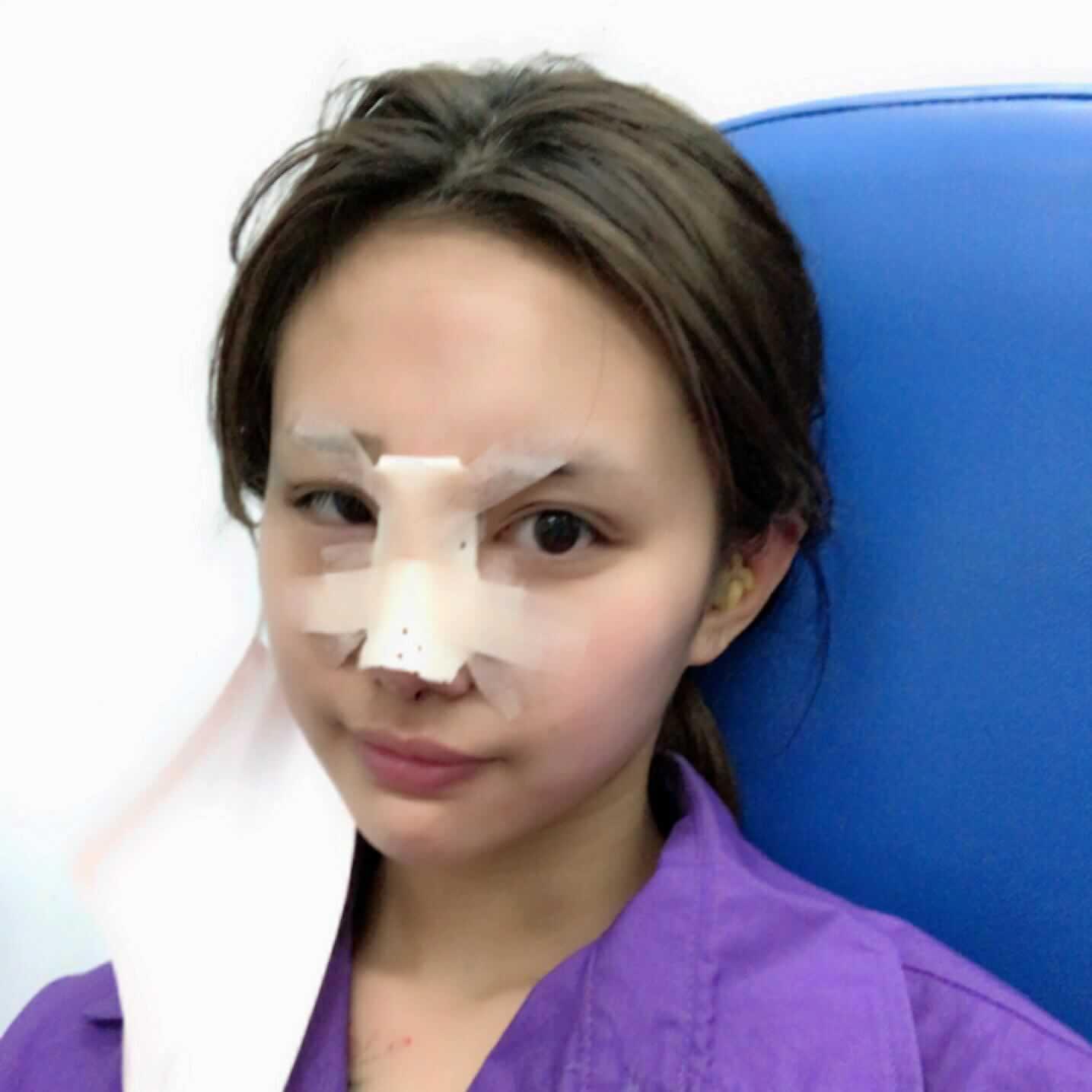 终于下定决心做了一个肋软骨隆鼻,以后我就是美美哒的网红。