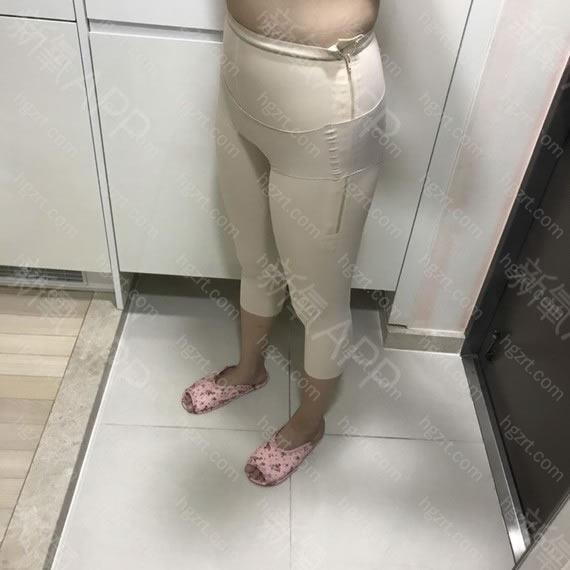 手术项目:大腿环吸?臀部线条
