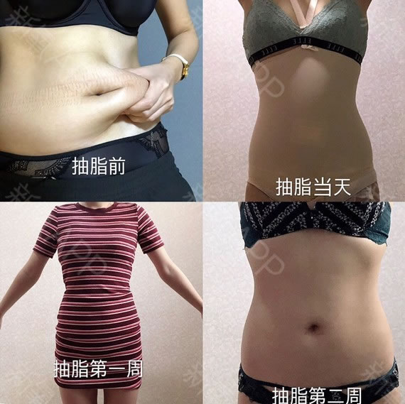 来看我的韩国365mc医院吸脂瘦腹部减肥日记