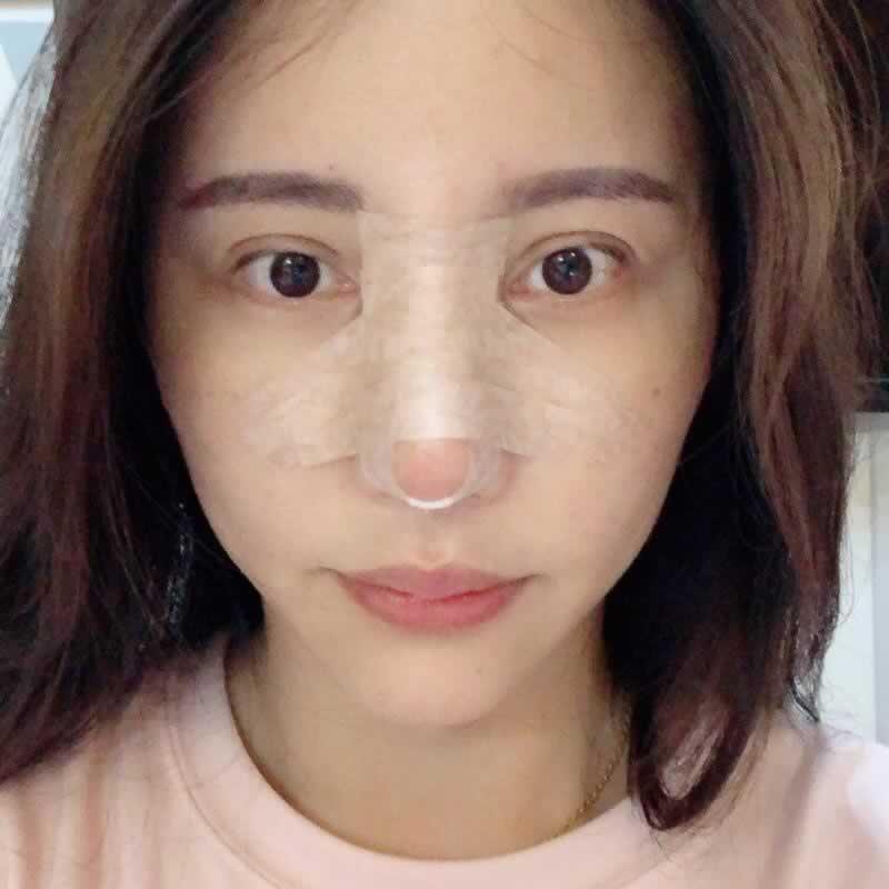 我在韩国纯真整形外科做的鼻修复手术延长鼻小柱很成功,原来医生的技术很重要啊。