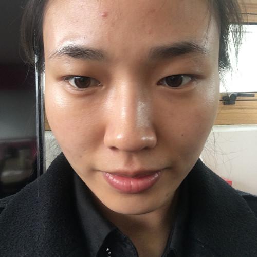 终于去韩国做了我心心念念的双眼皮,是在韩国清潭first整形做的,好医院做完恢复的就是快呀