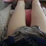韩国大腿吸脂医院排名来咯,我觉得这家可以