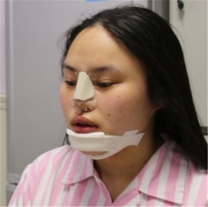 整鼻子有多少人后悔的?我在成都美容整形医院做的效果很不错。