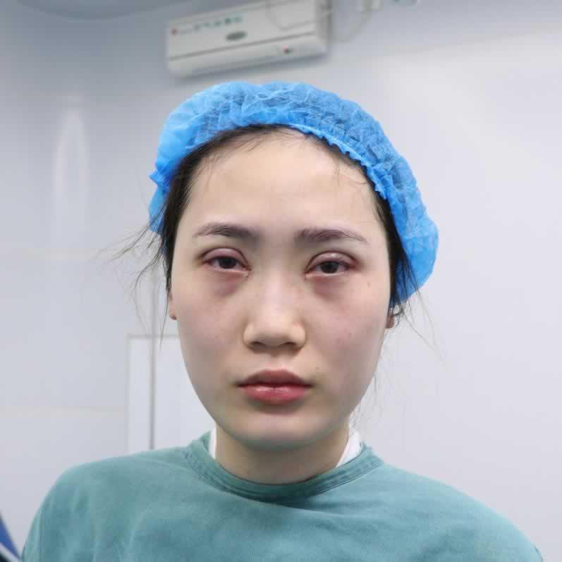 东莞眼综合手术哪家医院好?东莞华美医生技术很不错。
