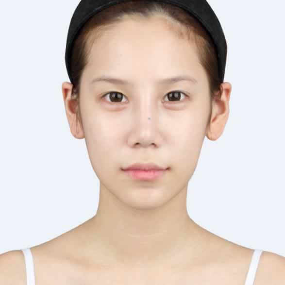 韩国哪家整形医院好?看看我做的凸嘴矫正+面部三件套手术