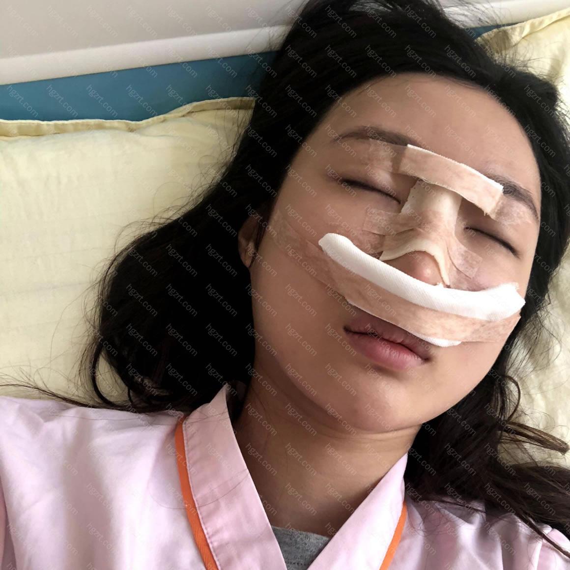 我的鼻子是不是恢复的很快呢