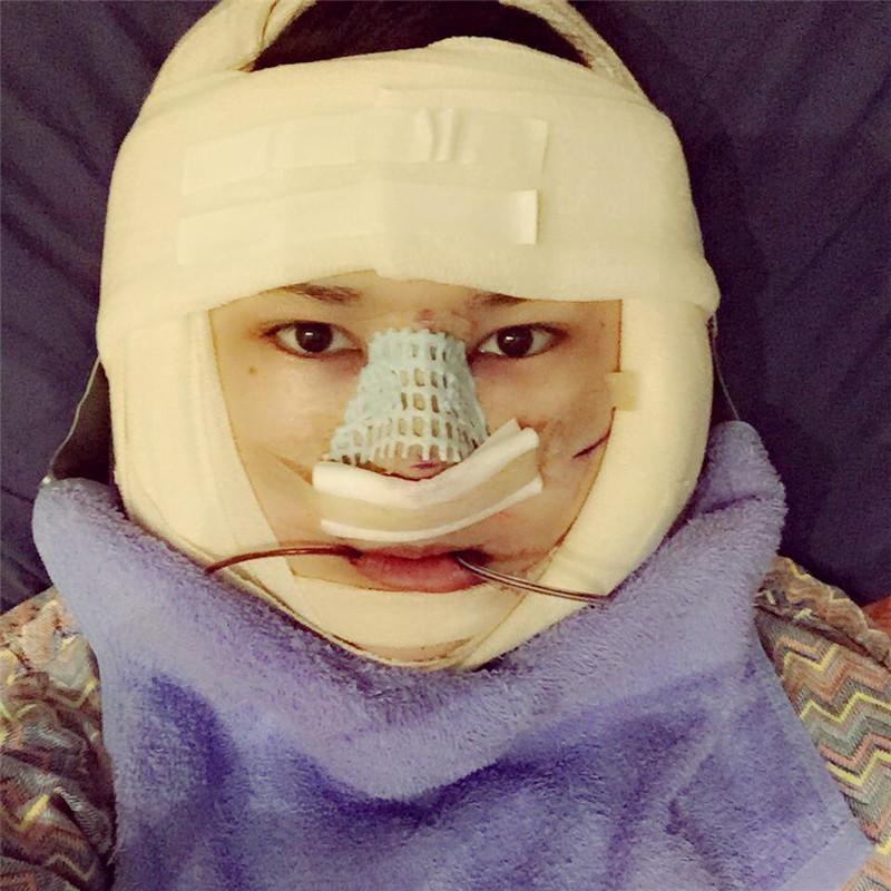 韩国面部轮廓整形靠谱吗?很庆幸去韩国做了手术现在恢复的很满意。