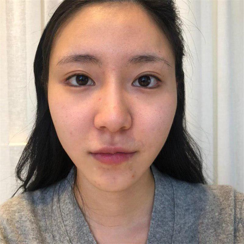 韩国鼻部多项手术价格多少?三万块钱能做吗?