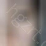 请问这种黑眼圈是什么类型的