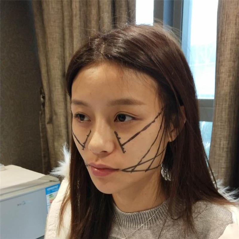 重庆鹏爱整形怎么样?我抱着试一试的心态做了面部提升,术后恢复效果不错呢。