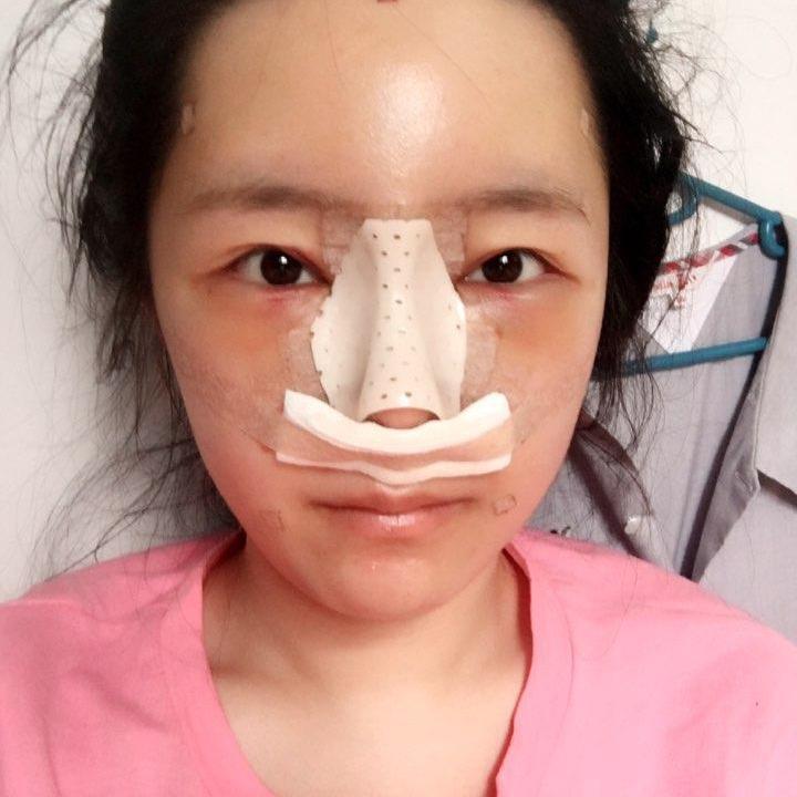 韩国鼻综合最好的医院是哪里,觉得是我做的这家不信来看呀。