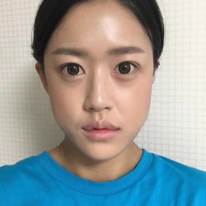 韩国EU整形技术就是好,面部不对称手术彻底改变了我。