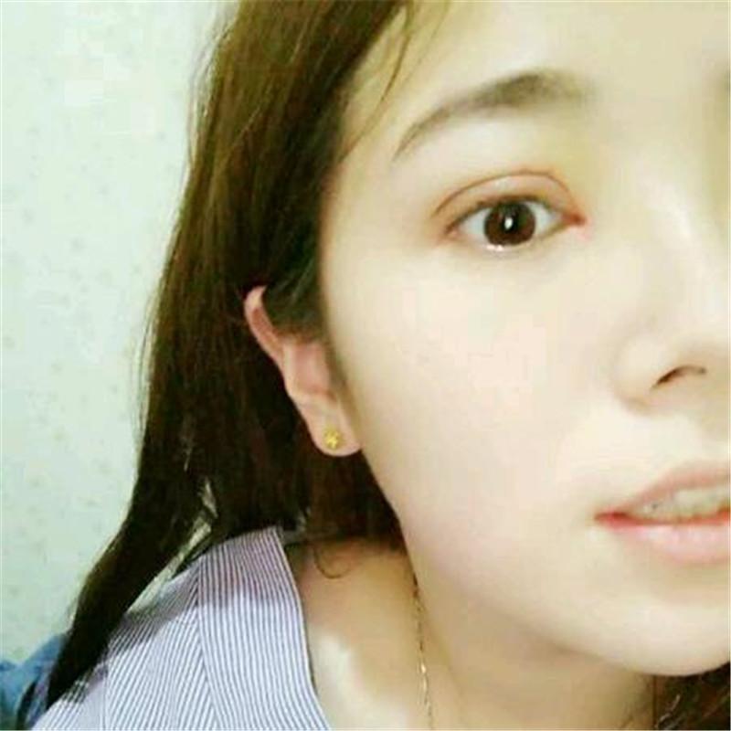 医生跟我说要想恢复到那种天生似的双眼皮差不多需要半年左右