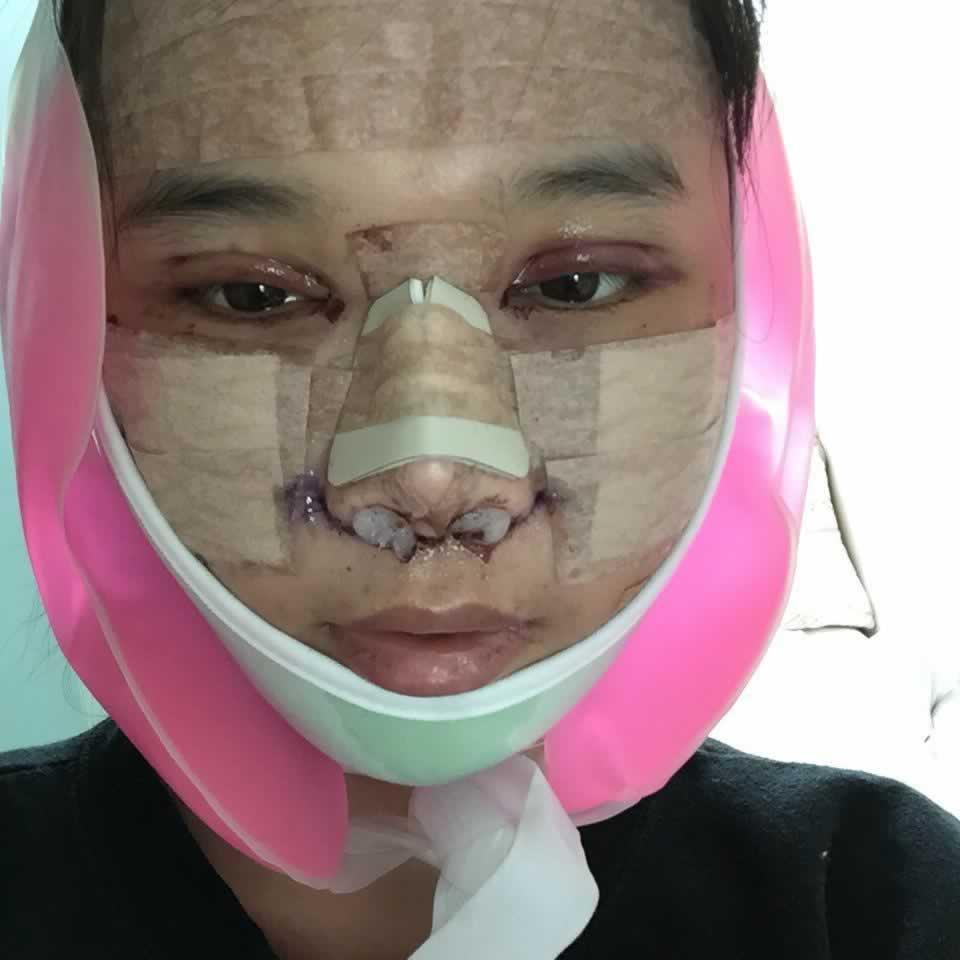 我在韩国做的V-LINE瓜子脸,V-LINE瓜子脸手术彻底改变了我。