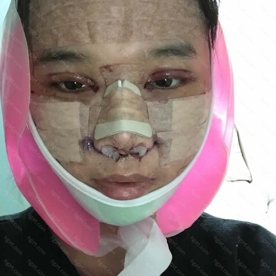 【V-LINE瓜子脸手术第3天】晚上每隔一两个小时就要起来喝水