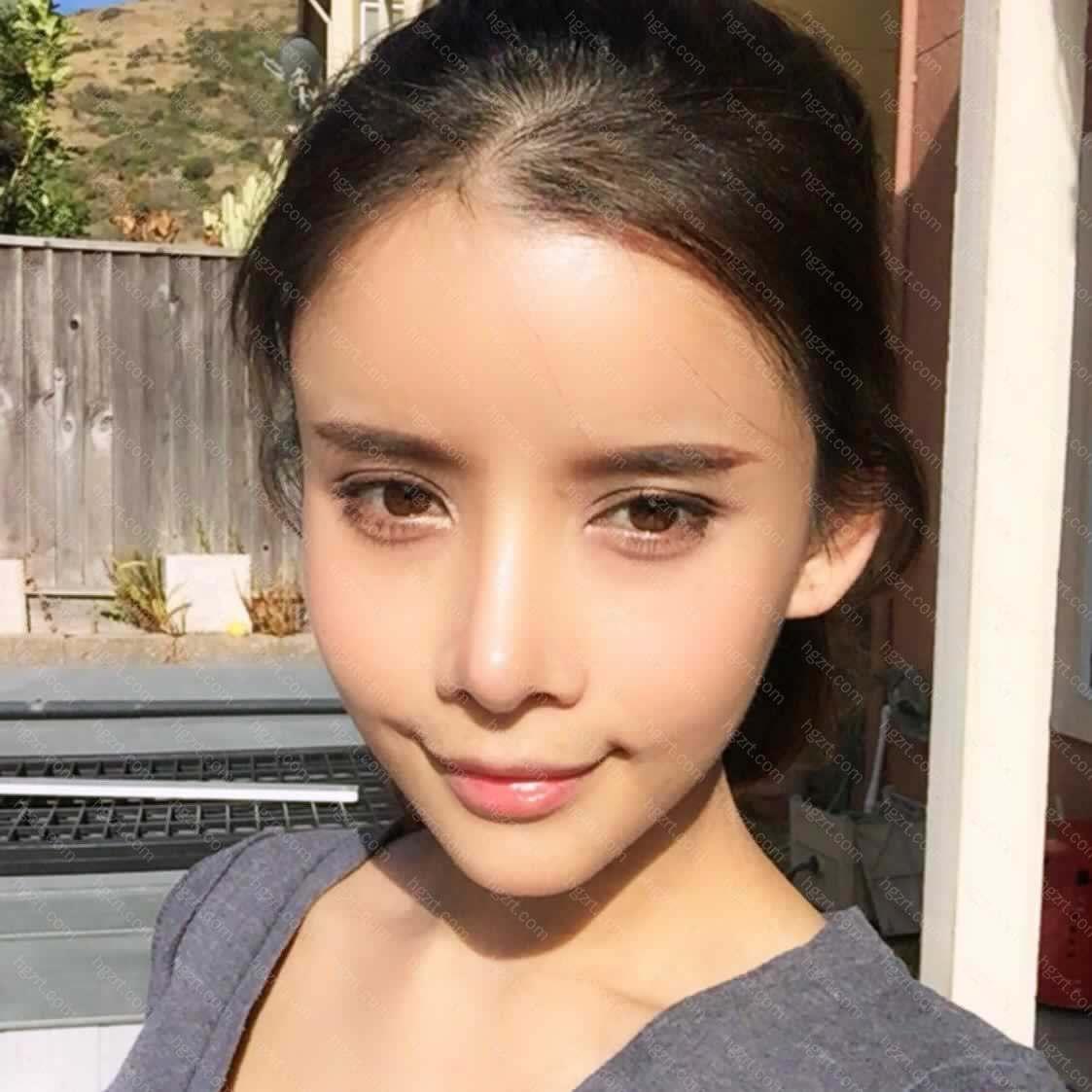 【V-LINE瓜子脸手术第125天】大家好我是莉莉