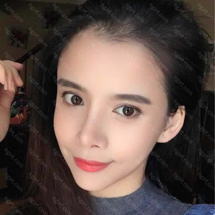【V-LINE瓜子脸手术第450天】这次来韩国做玻尿酸填充苹果肌和太阳穴